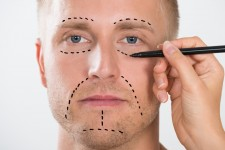 Facelift & Minilift (men)