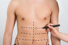 Liposuction / Liposculpture (men)