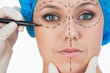 Facelift & Minilift (women)